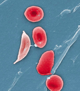 Image of sickle cell